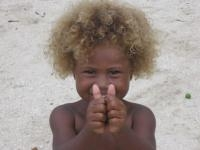 Genetic Variation Responsible for Melanesian Blonde Hair