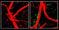 Latest Signs On How ApoE4 Affects Alzheimer's Risk Offered by NIH-Funded Research