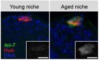 Way to Delay Aging of Stem Cells Identified