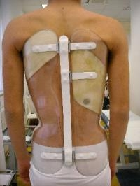 Back Brace That can Measure How Long It is Worn for is an Innovative Scoliosis Treatment