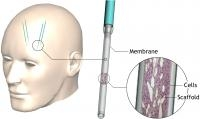 Therapeutic Potential For Huntington's Disease Available in Device Implanted In Brain