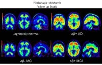 Brain Scans Detect Early Evidence of Alzheimer's Disease