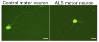Research Opens a Drug-screening Platform for ALS-associated Abnormalities