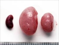 New Drug may Effectively Treat Common Form of Kidney Disease