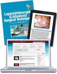 Laparoscopic Gallbladder Removal may be Enhanced by New Tools and Techniques