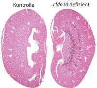 New Insights into Salt Transport in the Kidney: Study