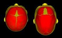 Causes of Sagittal Craniosynostosis Identified