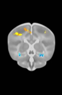 Gene Changes Seen in Alzheimer's Patients also Found in Brain Scans of Newborns