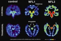 Sports-related Concussions Has Been Picking Up Momentum