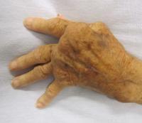 Genes Promote Rheumatoid Arthritis