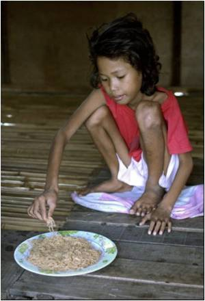Food Supplements Don't Improve Weight of Malnourished Children
