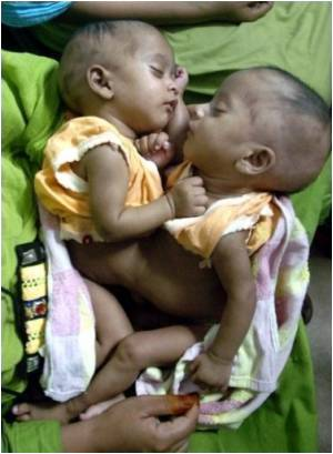 Doctors Say Nigerian  Conjoined  Twins Have Complex  Internal  Anatomy