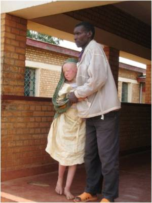 Albinos in Burundi Take Refuge from Sorcerers and Organ Traders
