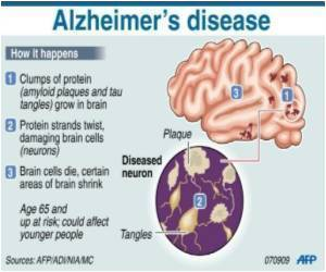 Researchers Shed Light on How Alzheimer's Could Occur