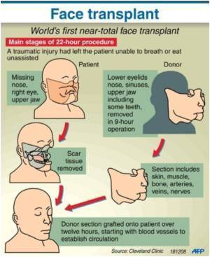 Mauled American Woman Gets Face Transplant