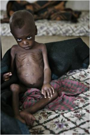 Drought Victims in Ethiopia Need Urgent Help