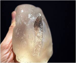 Faulty Breast Implants Spark Global Health Scare