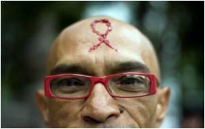 HIV Positive Participants Hide Attendance at AIDS Conference
