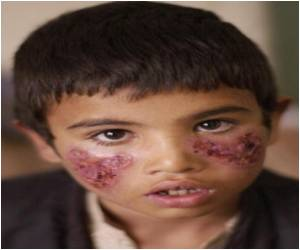 UN Reports That Millions of Afghans at Risk from Parasitic Disease