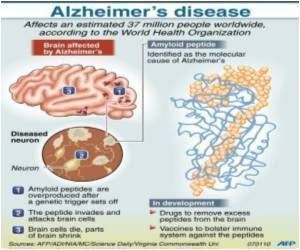 Research Finds Key Alzheimer's Risk Gene Causes Alterations in Shapes of  Brain Protein Deposits