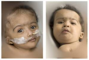 Conjoined Twins Set for Surgery in Australia