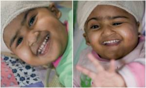 Bangladeshi Twins Leave Intensive Care After Remarkable Recovery