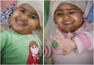 Separated Bangladeshi Twins Expected to Make Full Recovery: Doctors