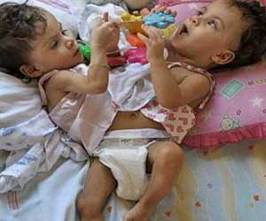 Brazilian Siamese Twins Celebrate First Birthday, Await Surgery
