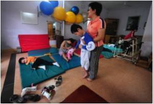 Incidence of Cerebral Palsy Remains Constant in India