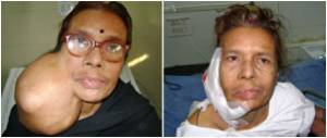 Doctors Remove Football-Sized Tumor From Indian Woman's Jaw