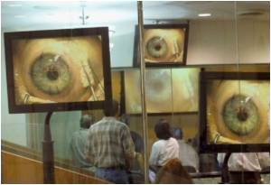 Delhi Witnesses Rise in Cases of Viral Conjunctivitis