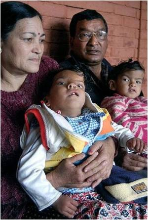 Conjoined Twins Did Not Get Best Post-surgery Care Says Nepal Doctor