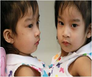 Separated Philippine Twins Doing Well