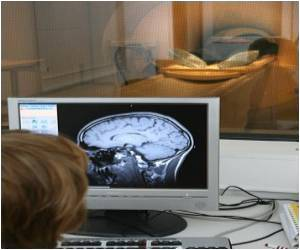 Process Vital to Brain Development Studied