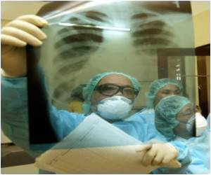 Experiment on Shrinking Tumors For New Lung Cancer Treatment
