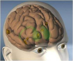 New Hope for Parkinson's Patients-A High Tech Brain Implant