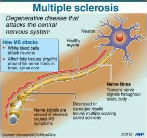 Immune Cells can Attack Nerves  in Multiple Sclerosis After Viral Infection