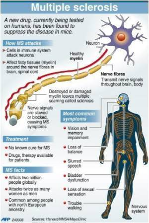 New Multiple Sclerosis Drug Promising