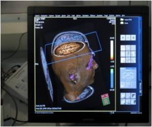 New Technology to Speed Up Diagnosis of Stroke from Vertigo, Dizziness Symptoms