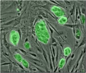 Flexibility of Adult Stem Cells