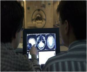 25-Year-Old Woman Suffering Brain Hemorrhage Treated Using a Rare Technique