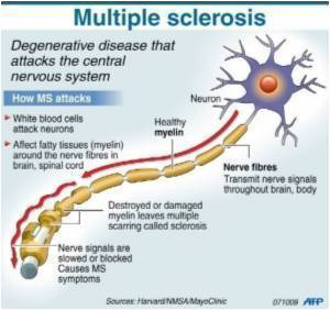Gene That Controls Nerve Conduction Velocity Associated With Multiple Sclerosis