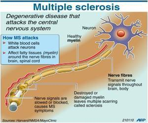 Gene Haul in Multiple Sclerosis Probe Doubled