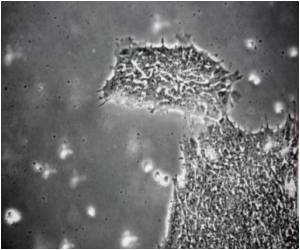 Key to the First Cell Differentiation in Mammals Discovered