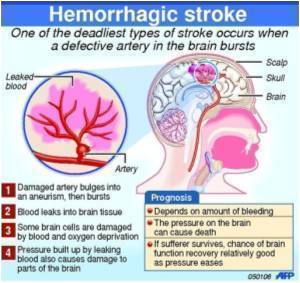 Risk of Hemorrhagic Stroke at Younger Age High in Native Hawaiians