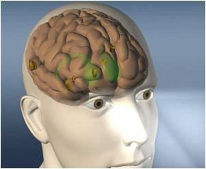Brain-controlled Device Improved by Robotic Arm