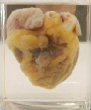 Scientists Discover How Body Cells can be Put to Use to Regenerate Heart Muscles