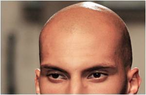 Early Baldness Doubles Risk of Prostate Cancer