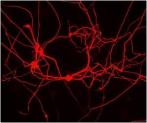 Novel Technique to Reach Neuron Through Blood-brain Barrier