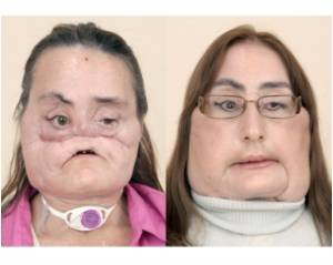 First US Face Transplant Recipient Revealed